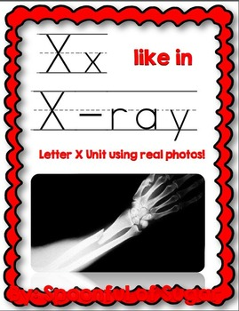 X Like In X-Ray (Letter X Unit Using Real Photos!)