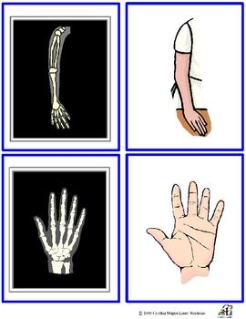 X-Ray Match Activity